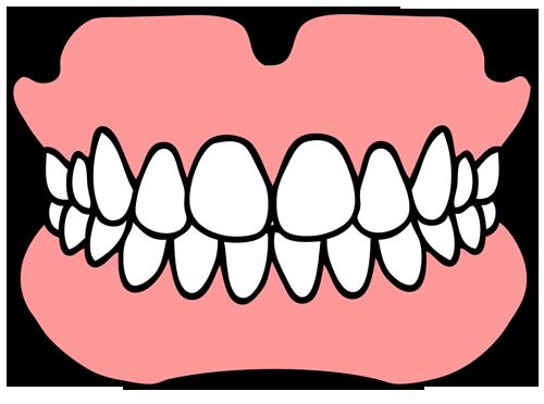 歯科模型(歯型)